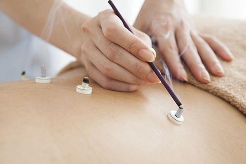 Women wearing the fire moxibustion