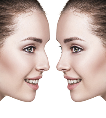 Female nose before and after cosmetic surgery