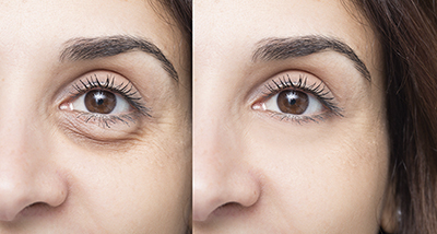 Woman eye before and after cosmetic treatment with and without e