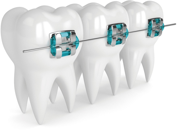 3d render of teeth with braces