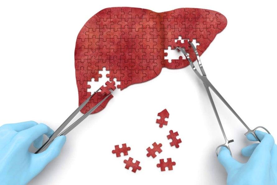 190801-Aca1-des-f1-hepatitis